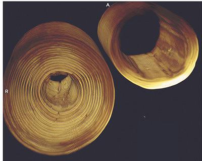 Рис. 12. Внутренняя структура древесины сосны и ели, определенная методом МРТ